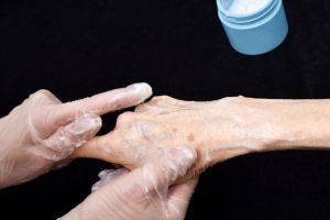 加齢で皮膚が剥がれる「スキンテア」問題 保湿が重要